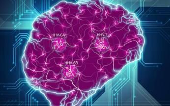 alzheimersandviruses